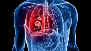poumon-cancer