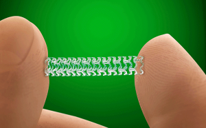 Stent (photo d'illustration)